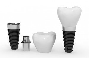 oak ridge dentist dental implants